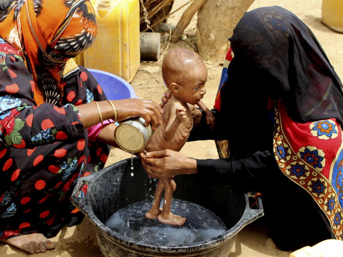 A severely malnourished infant is bathed in a bucket Aug. 25, 2018 in Yemen's Hajjah province